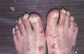 Лечение псориаза в клинике