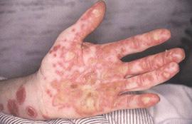 Отличие синдрома Рейтера от псориаза, как выглядит, фото