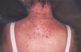 Гомеопатия от псориаза на волосистой части головы