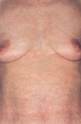 Токсидермия: причины, симптомы, лечение.